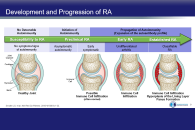 New and Emerging Therapies for Rheumatoid Arthritis: Focus on Jakinibs - Updated 9/11/19